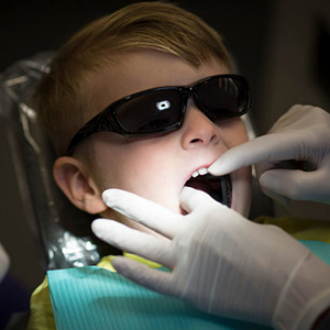 SDF cavity treatment for children